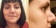 AVRASİYA HOSPİTALINDA BİABIRÇILIQ: Qadın burnunu əməliyyat elətdirdi, bu günə düşdü - ŞOK FOTO