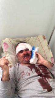 AYB- nin üzvü, hüquq müdafiəçisi və baş redaktoru Polis Mayoru  tərəfindən  döyülüb (FOTO,VİDEO)