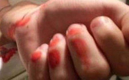 18 yaşlı qız damarlarını doğradı - Bakıda